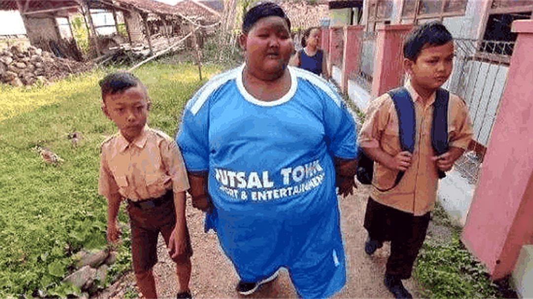 世界上最胖的少年:每天要吃5顿饭,11岁体重就有400斤!