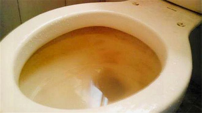 马桶黄渍难去除,保洁阿姨教你一招,马桶比新的还亮