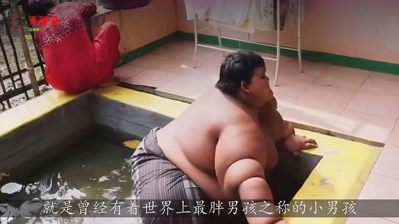 全球最胖小男孩:年仅10岁体重高达400斤,饭量是成年人2倍