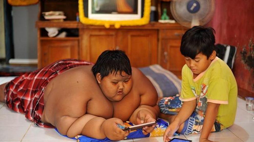 世界最胖小孩,年仅10岁体重高达400斤,减肥后的样子令人意外