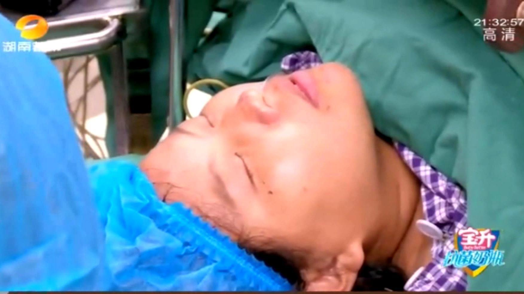孕妈刨宫产,看到推肚子的一幕,实在是隔着屏幕抖觉得疼