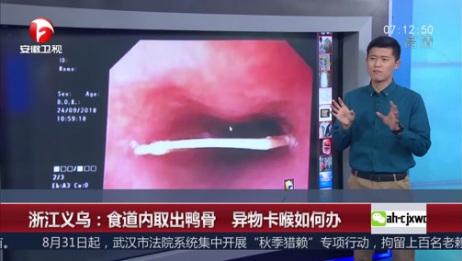 [超级新闻场]浙江义乌:食道内取出鸭骨 异物卡喉如何办