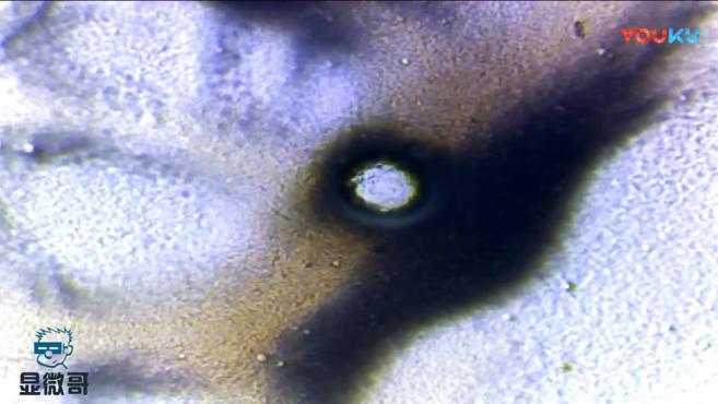 """儿童""""郁美净""""显微镜下放大1000倍,发现里面很多圆点,你知道这是什么吗"""