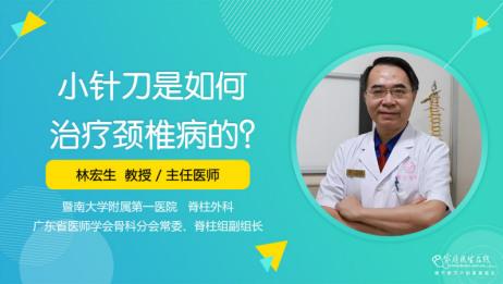 小针刀是如何治疗颈椎病的?