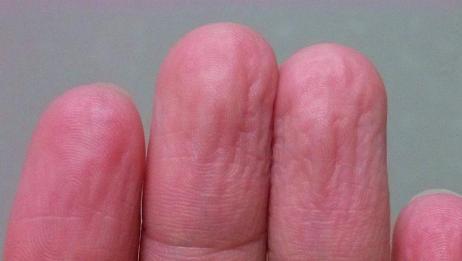 为什么手指长时间泡水被变皱?这个暗示看完你就明白了!