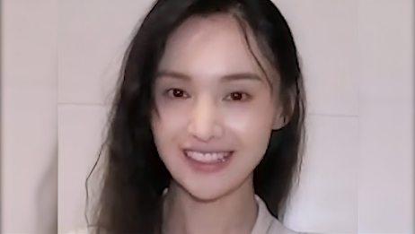郑爽素颜太憔悴,被指又秃又瘦无精打采?29岁像40岁状态令人担忧