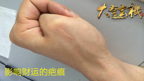 这些疤痕会影响你的运势 这几个地方不可不小心 大有玄机