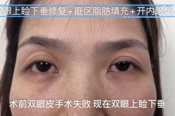 眼瞼下垂 手術 失敗