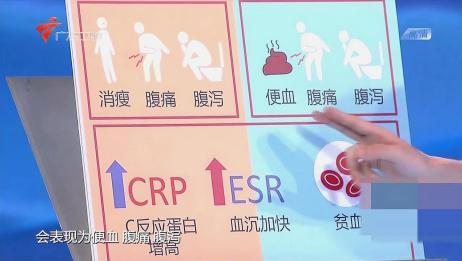 身体出现这些情况要警惕,可能是结肠炎导致的,看完要早注意
