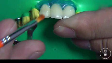 烤瓷牙崩瓷修复