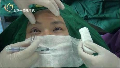 陈海良 双眼皮手术(埋线重睑)