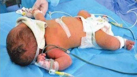 孕妇超预产期好几天才去检查,导致孩子窒息死亡,产妇悔恨痛苦