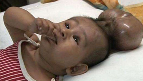产检正常胎儿却畸形,胎儿畸形孕妇有感觉吗?