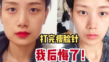 瘦脸针真的不是人人能打的!血泪经验分享给你们!