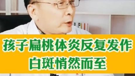 济南看白癜风的医院,孩子扁桃体炎反复发作,白斑可能悄然而至!