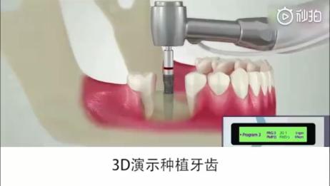 3D演示种植牙齿「大连齿医生口腔种植中心」