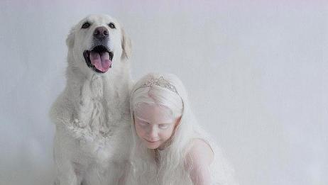 乌克兰白化病女孩,犹如降落人间的天使,自信又美丽