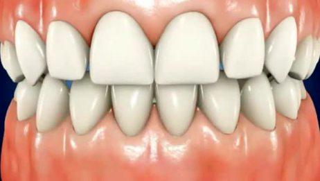 进口冷光美白牙齿