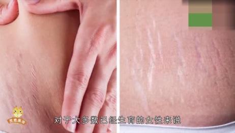 怎么去除妊娠纹?教你3个小方法,轻松淡化妊娠纹,恢复皮肤弹性